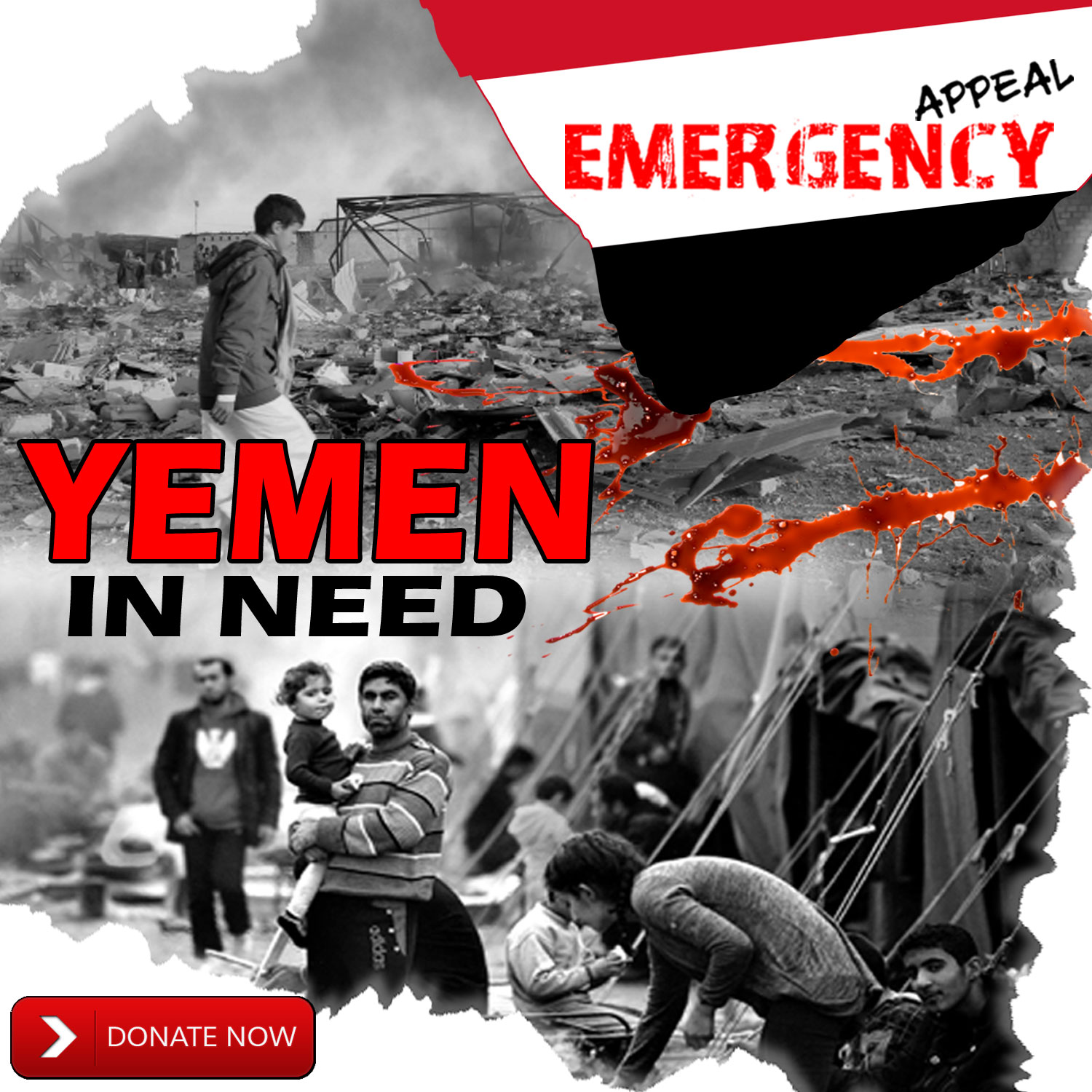 Donate for Yemen Emergency Appeal. 100% Donation Policy.